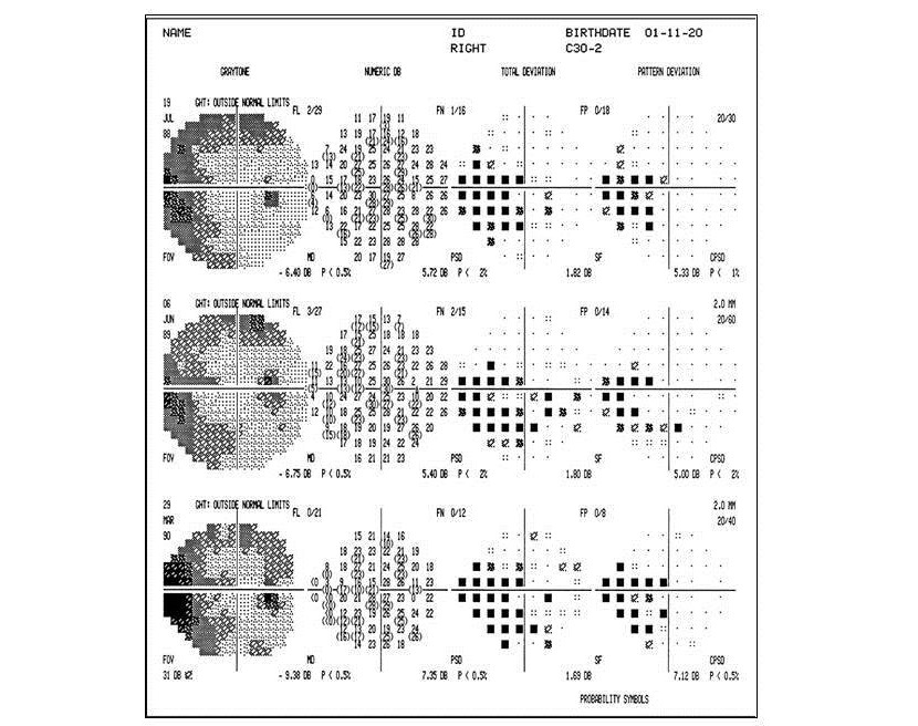 Visual field changes in glaucoma